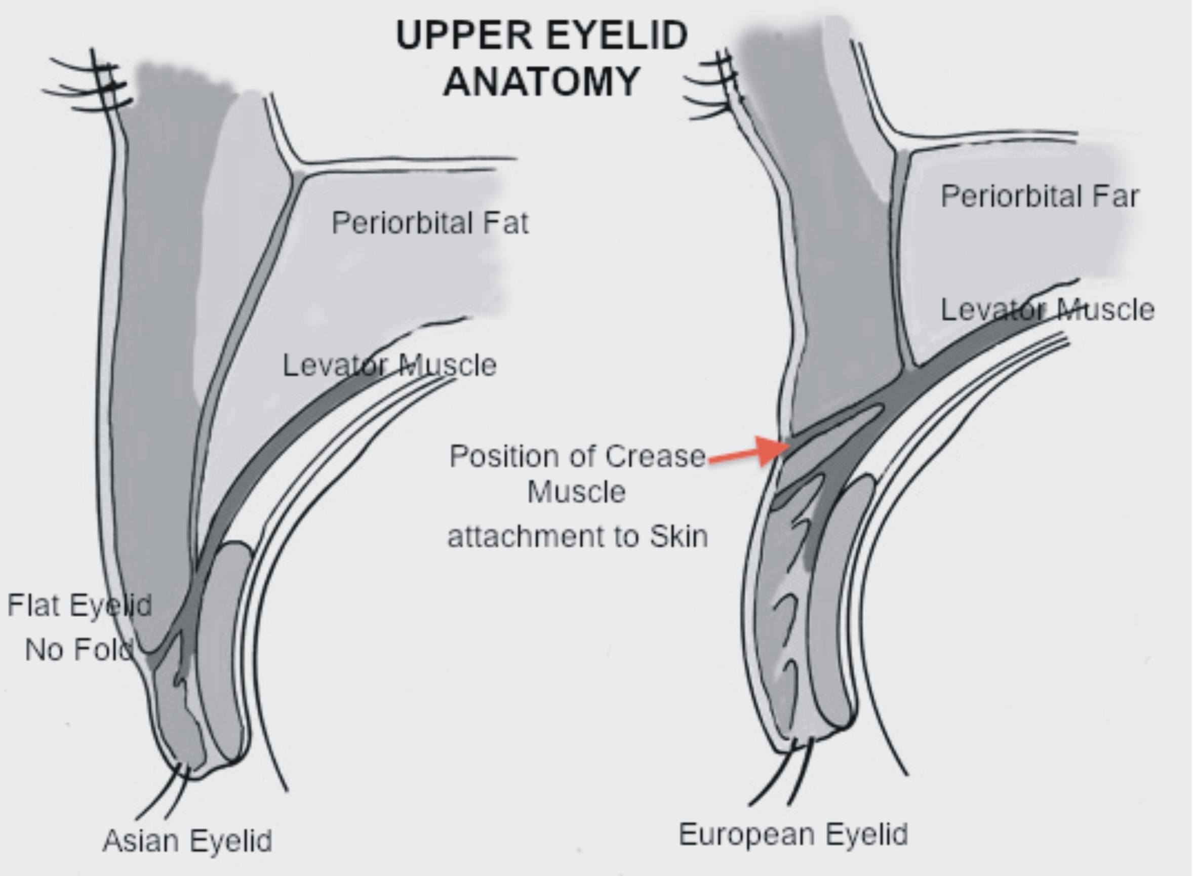 Exelent Asian Eyelid Anatomy Gallery - Anatomy and Physiology Tissue ...